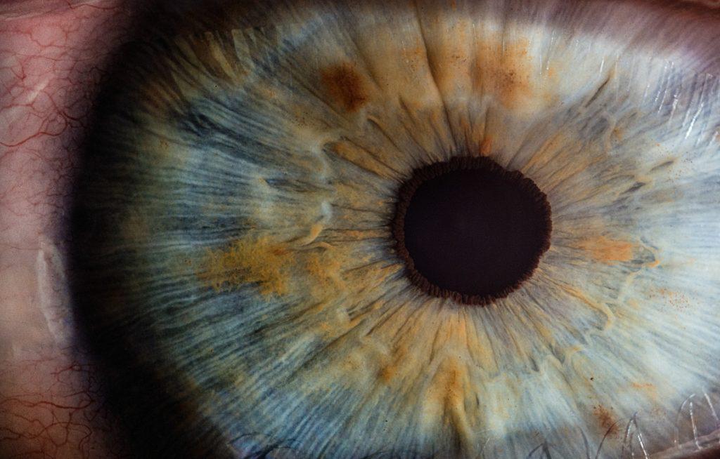 Šta je katarakta i kako se liječi?